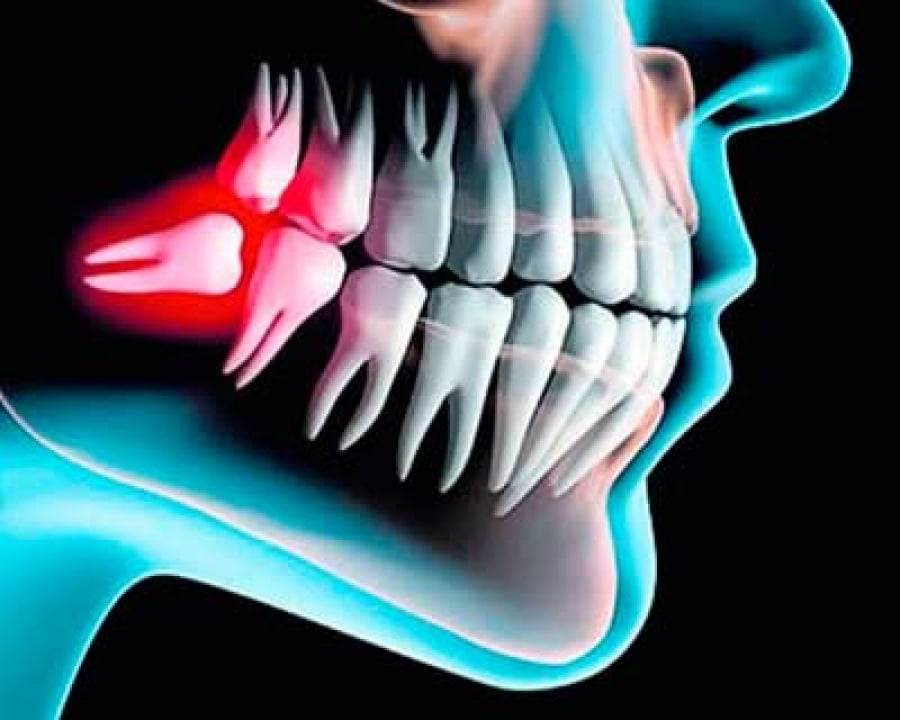imagen de cirugia oral clinica dental madrid