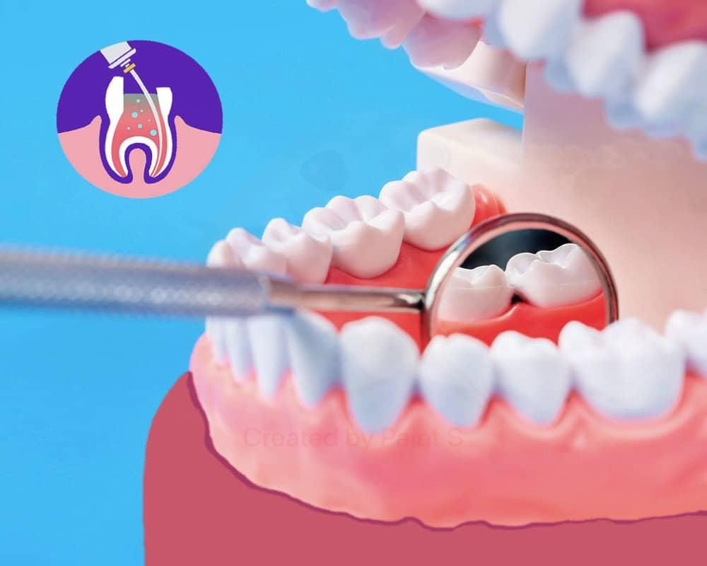 imagen de endodoncia clinica dental moratalaz 66